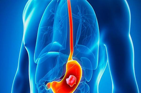 中国食物胃癌占全球一半!医生提醒:这类患者真梭子蟹隔水蒸要多久能熟图片